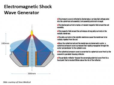 Electromagnetic generator system.
