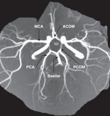Magnetic resonance arteriography illustrating the