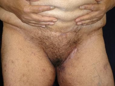 Inguinal hidradenitis suppurativa in a patient wit