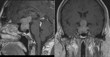 Magnetic resonance imaging (MRI) scan of pituitary