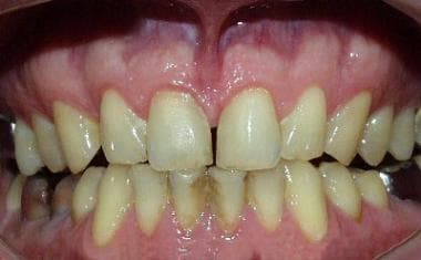 Moderate chronic gingivitis. Note that the papilla