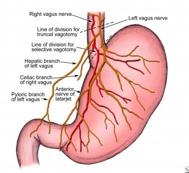 Peptic ulcer disease. Vagal innervation of the sto