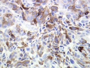This image depicts tumor cell cytoplasmic homatrop