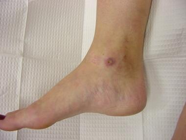 Medial malleolar ulceration following treatment of