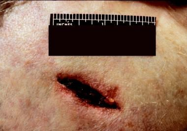 A chop wound produced by a tomahawklike tool. Note