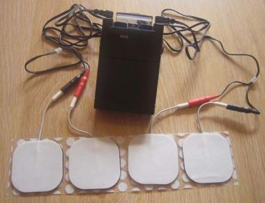 TENS (Transcutaneous Electrical Nerve Stimulator).