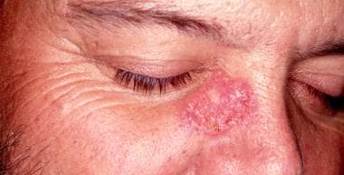 Cutaneous sarcoidosis. Violaceous papules or nodul