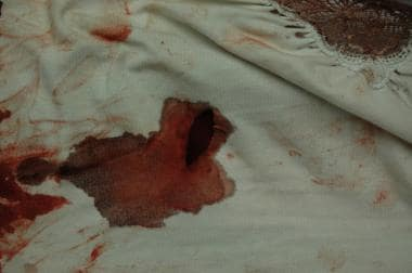The clothing of a victim of sharp force injury sho