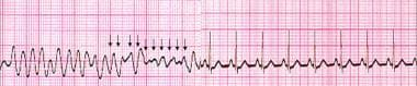 Ventricular fibrillation terminated by an unsynchr
