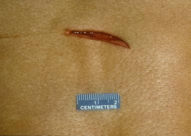 A stab wound. Note that the left angle has a squar