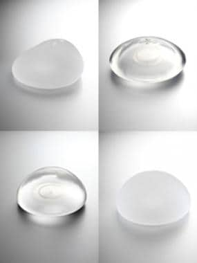 Natrelle (Allergan) breast implant options: smooth