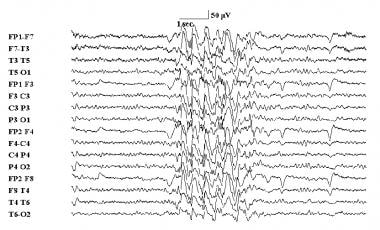 Slow (< 2.5 Hz) electroencephalographic spike a