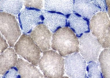 Mitochondrial myopathy, combined staining for the
