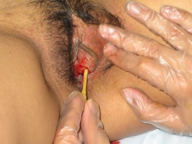 Insertion of a Word catheter.