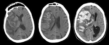 Noncontrast computed tomography scan (left) obtain