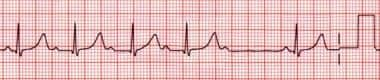 A common pattern of second-degree atrioventricular