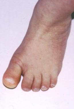 Wide gap between first and second toes and onychom