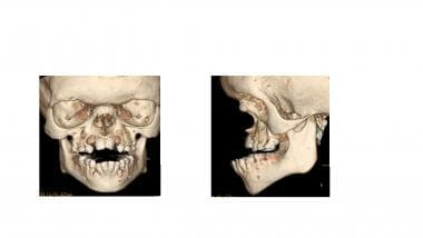 Three-dimensional facial CT scans in the same chil