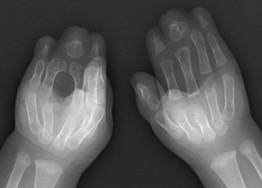 Radiograph of bilateral hands in the same patient