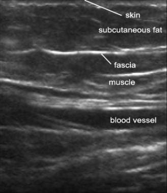 Ultrasound image of normal soft tissue.