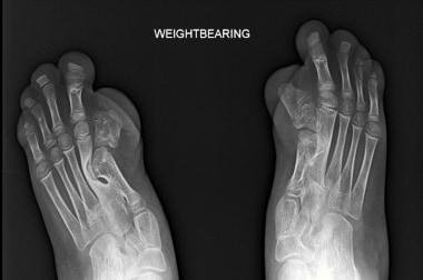 Radiograph of bilateral feet in the same patient a