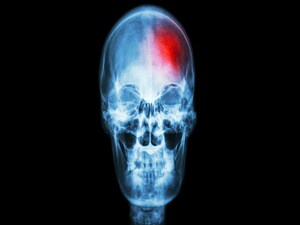 First Clinical Evidence of Neuroprotection in Acute Stroke?