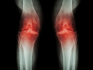 Real Acupuncture Beat Sham for Osteoarthritis Knee Pain