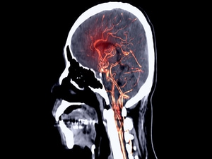 Aneurysm Recurrence Reduced by Hydrogen Coil in HEAT Trial