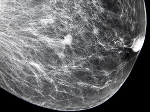 Novel Combo Boosts Response in HER2– Breast Cancer