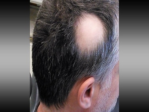 Another JAK Inhibitor Shows Promise for Alopecia Areata